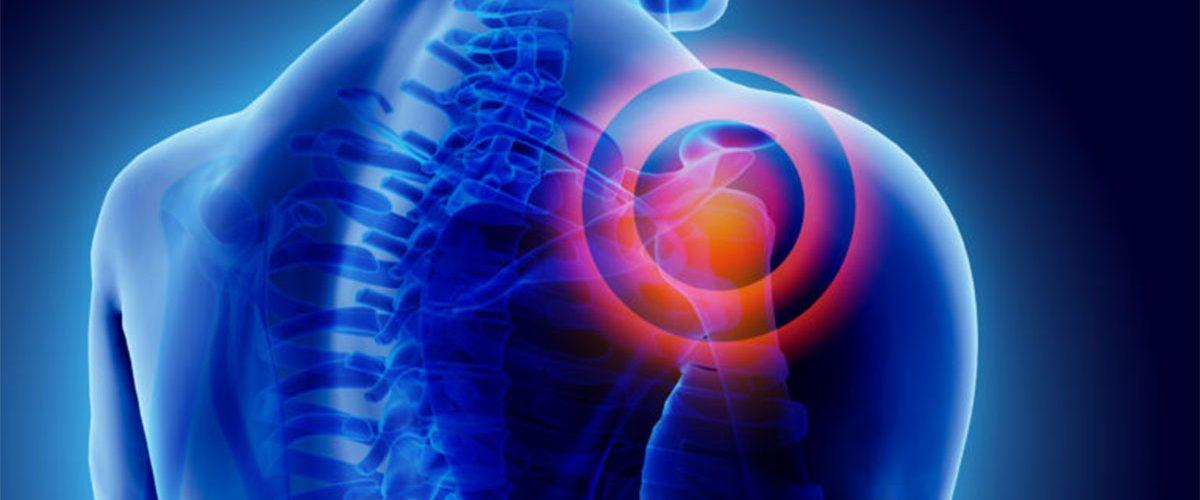 Integratori per i dolori articolari